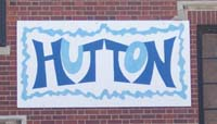 Hutton sign